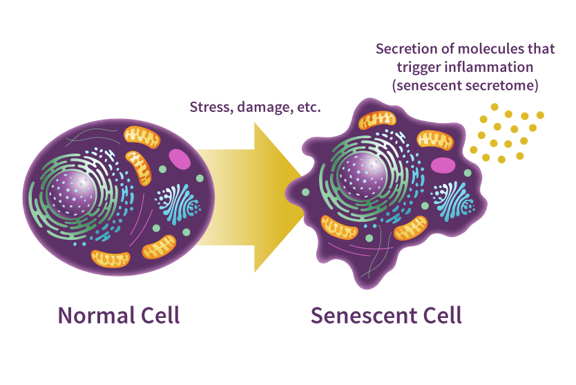 graphic showing a normal cell and how it changes into a senescence cell after stress and damage, and the senescent cell secretes molecules that trigger inflammation